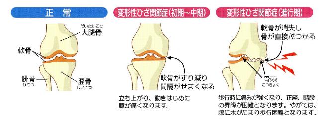 水 症状 たまる 膝 に が